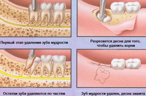 Сколько длится боль после удаления зубов мудрости
