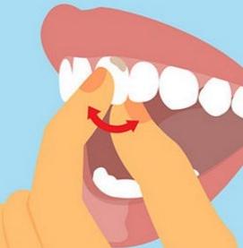 Посинел шатающийся зуб