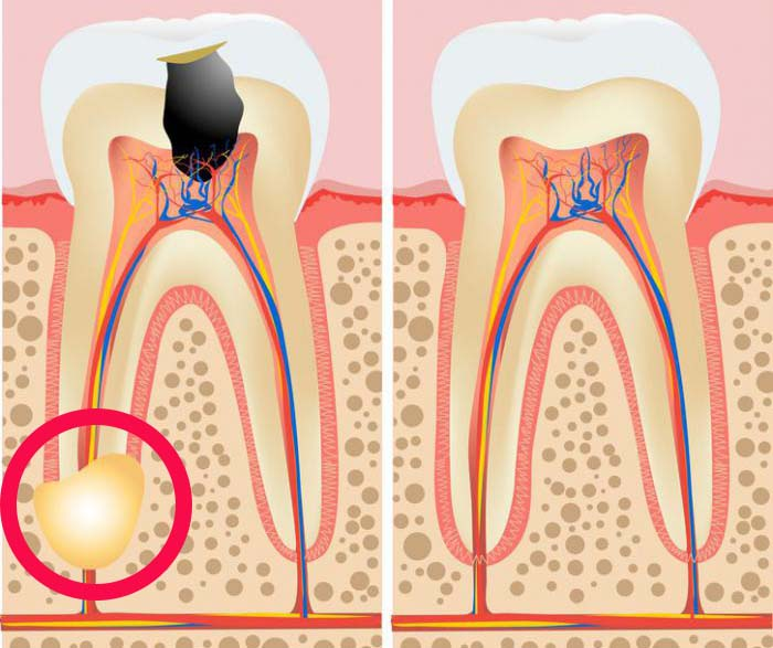 Виды гранулем зуба