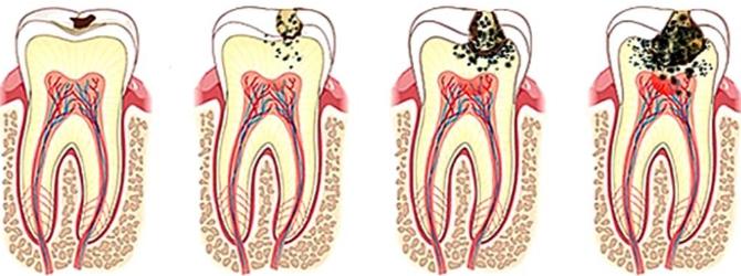 Лечение воспаленного зубного нерва