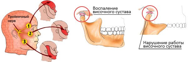 Причины боли зуба, которая отдает в ухо