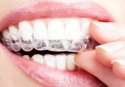 Стоматологическая капа для зубов