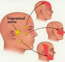 Тройничковый нерв, виды, места воспаления