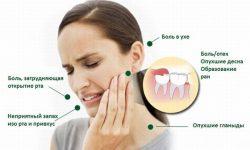 Симптоматика прорезывающегося зуба мудрости