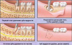 Процесс удаления зуба мудрости