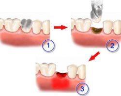 Осложнения после удаления зуба