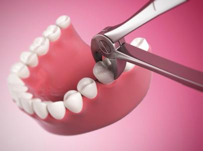 Огромный сгусток крови после удаления зуба