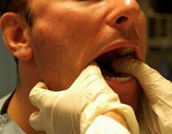 Лечение вывиха челюсти
