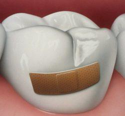 Причины, приводящие к серьезным повреждениям зубной эмали