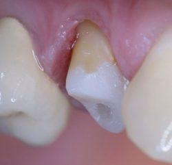 Некариозные поражения зубов могут возникать до прорезывания