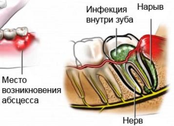 Что представляет собой абсцесс зуба, причины развития абсцесса десны, фото, методы лечения и облегчения самочувствия