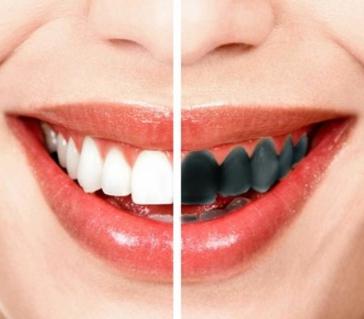 Почему чернеют зубы у взрослого и ребенка