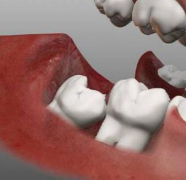 Что такое ретинированный зуб Клиническая картина и методы лечения