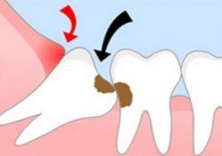 Дистопированный зуб мудрости