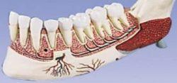 Формы челюстного остеомиелита