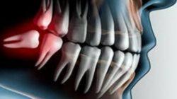 Горизонтальная ретенция зубов