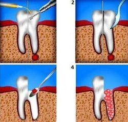 Хирургическое лечение кисты зуба