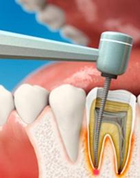Лечение зубного корня при воспалении