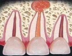 Осложнения при неправильном лечении зубов