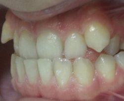 Патология и видоизменения зубов