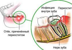 Периостит челюсти: виды причины, симптоматика и лечение