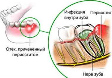 Периостит нижней челюсти: воспаление надкостницы верхней челюсти