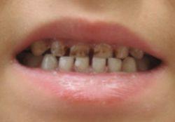Пигментация зубов