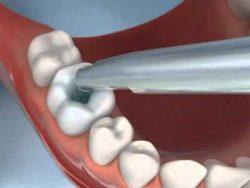 Пломбируем зуб дома