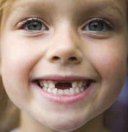 Помощь ребенку при смене молочных зубов