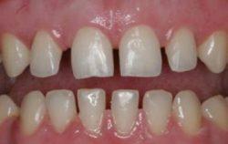Причины появления просвета между зубами