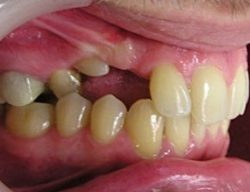 Признаки появления ретинированного зуба