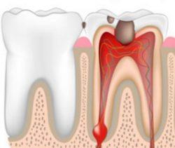 Воспаление зубного нерва, пульпит