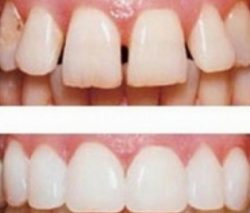 Щель между передними зубами