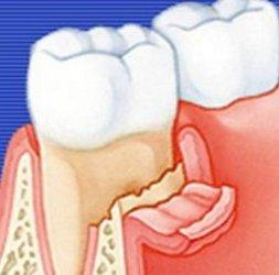 Чем лечить остеомиелит челюсти