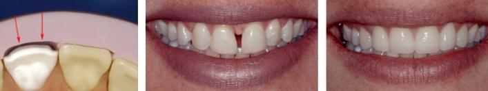 Как убрать щель между передними зубами (диастему)?