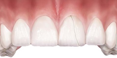 Трещина на переднем зубе как лечить