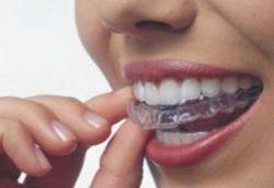 Убрать щели между зубами с помощью капп