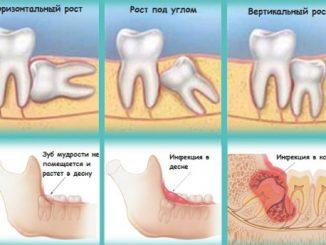Удаление зуба мудрости на нижней и верхней челюсти