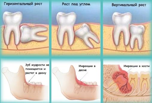 Перелом нижней челюсти после удаления зуба мудрости