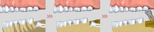 Процедура по удалению зуба мудрости