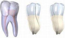 Выделяют три вида трещин на зубах
