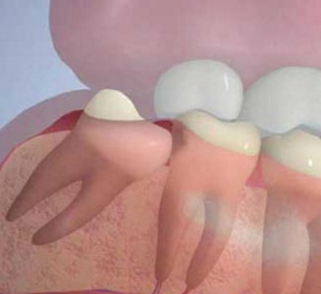 Зуб мудрости: где растет и какой по счету мудрый зуб