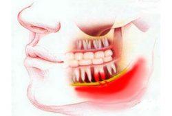 флегмона зуба