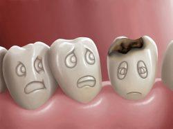 Гнилые зубы, последствия для организма