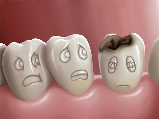 Какие могут быть последствия не своевременного лечения зубов