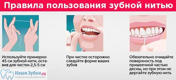 Для чего нужна зубная нить