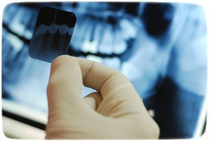 Рентген зуба во время беременности
