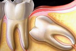 Облегчить боль когда режется зуб мудрости