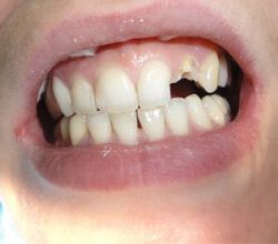 Сломался зуб под корень
