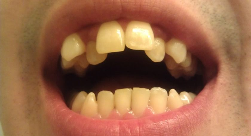 Кривые зубы у детей и взрослых: причины, как исправить искривление зубов